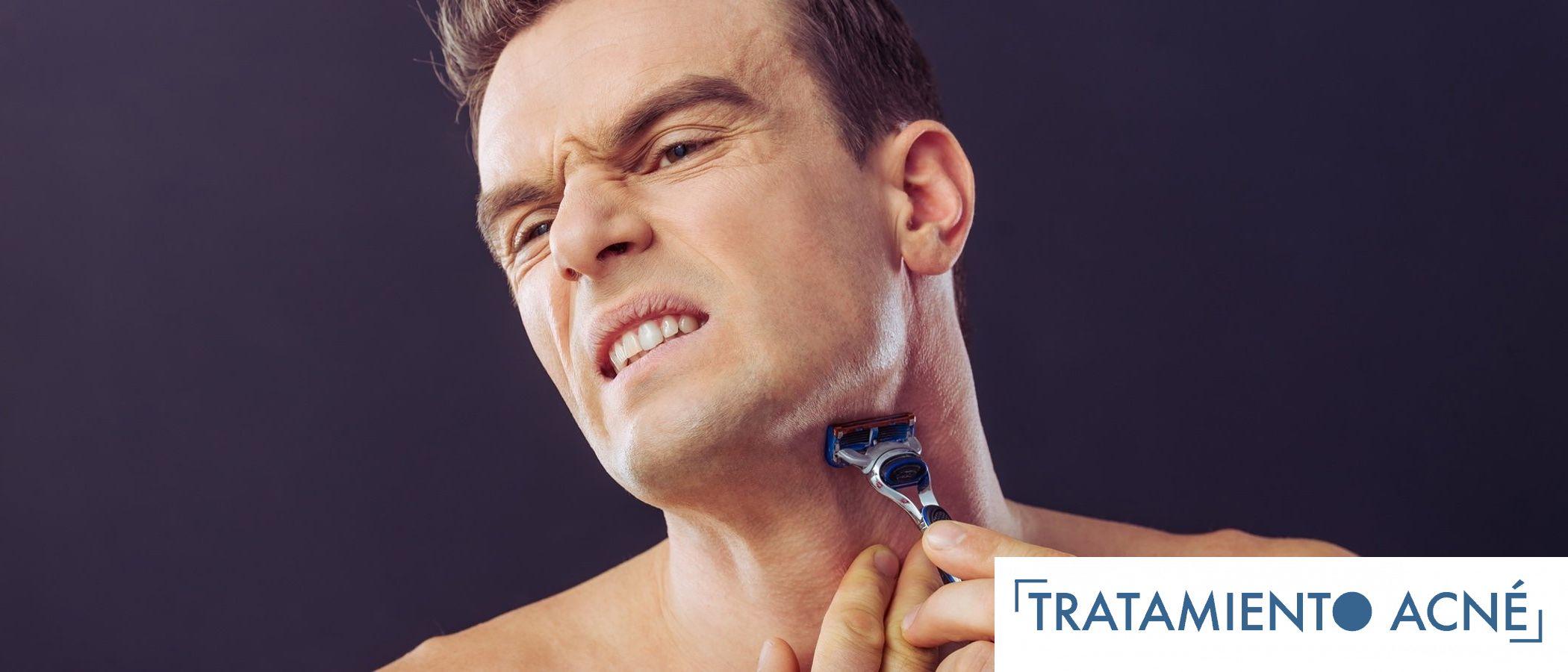 Irritacion de la piel tras el afeitado