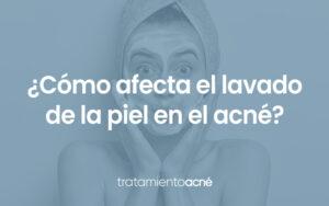 lavar-acne