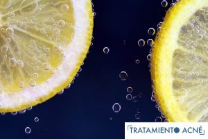 El Limon y el Acne